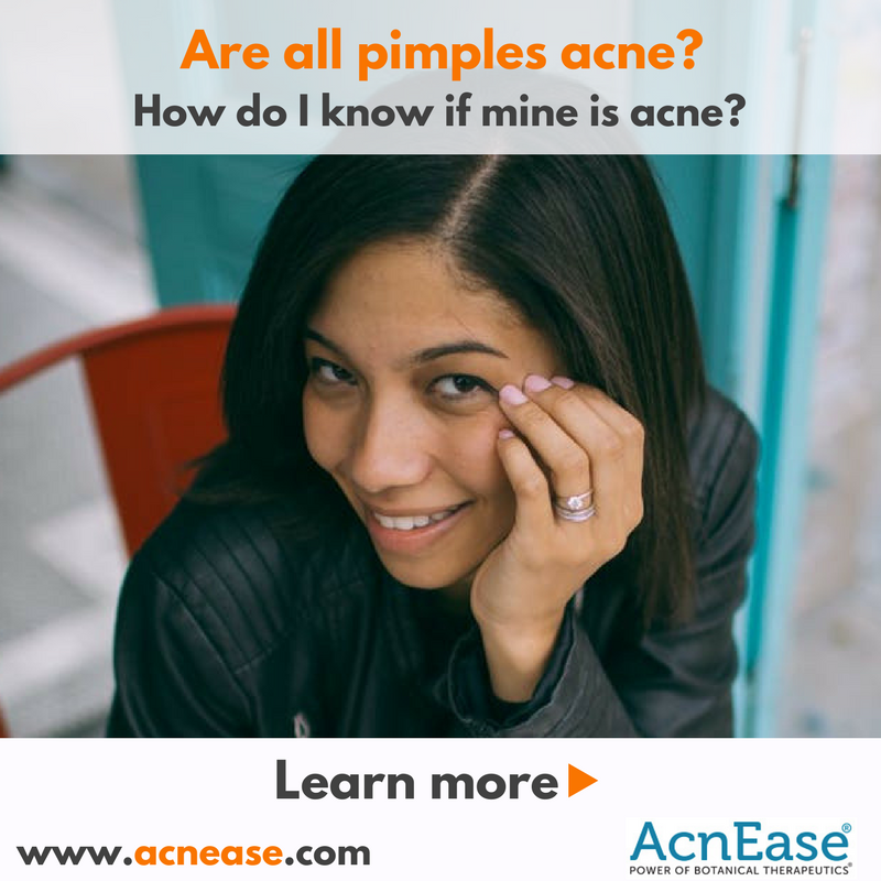 Are all pimples acne? How do I know if mine is acne?