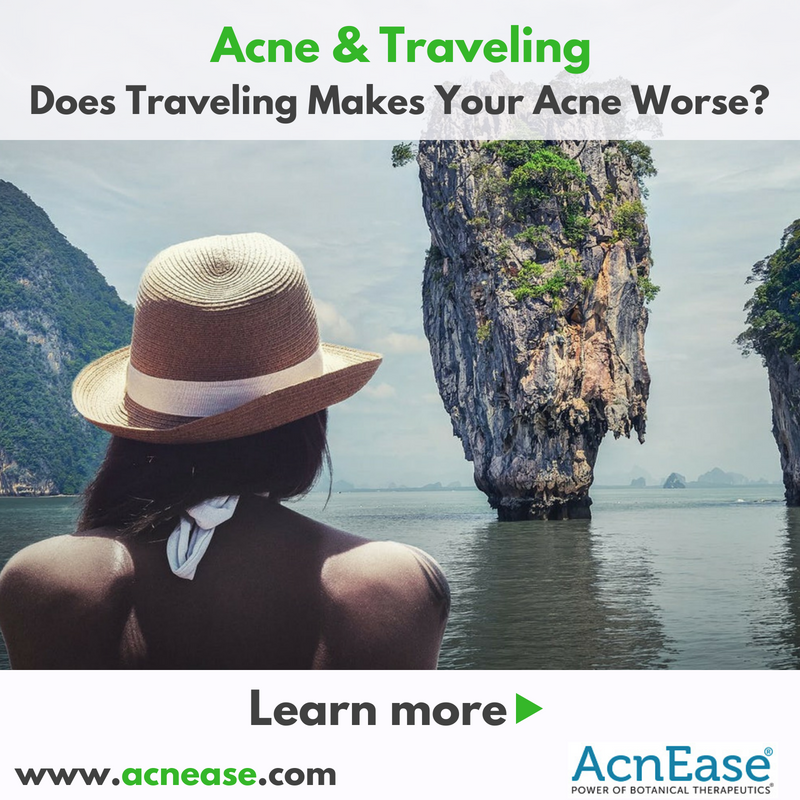 Acne and Traveling: Does Traveling Makes Your Acne Worse?