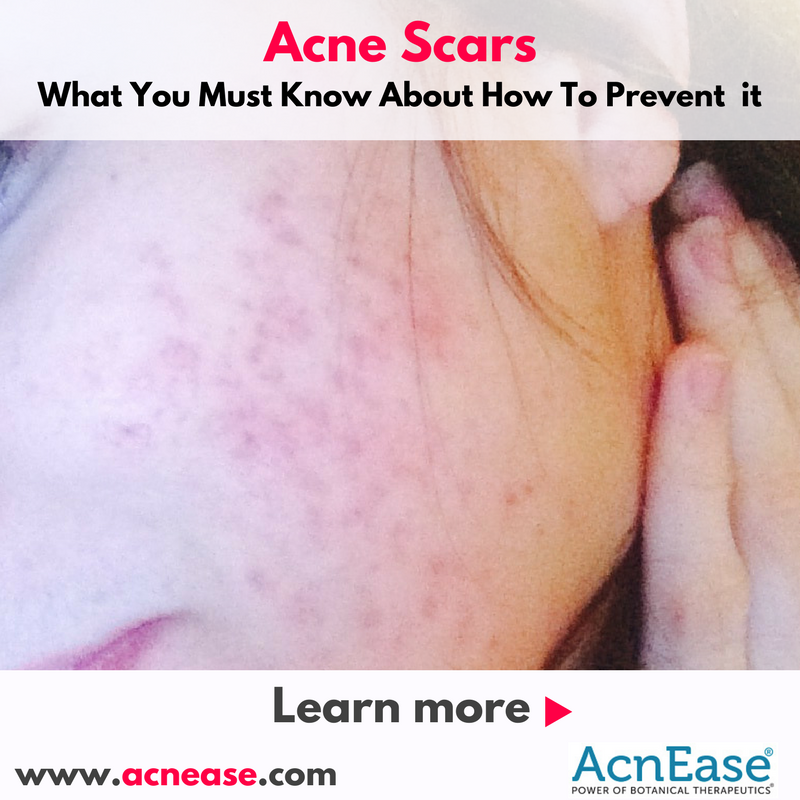 What You Must Know About How To Prevent Acne Scars