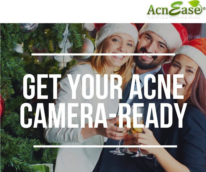 Get Camera-Ready with Tips to Conceal Any Type of Acne