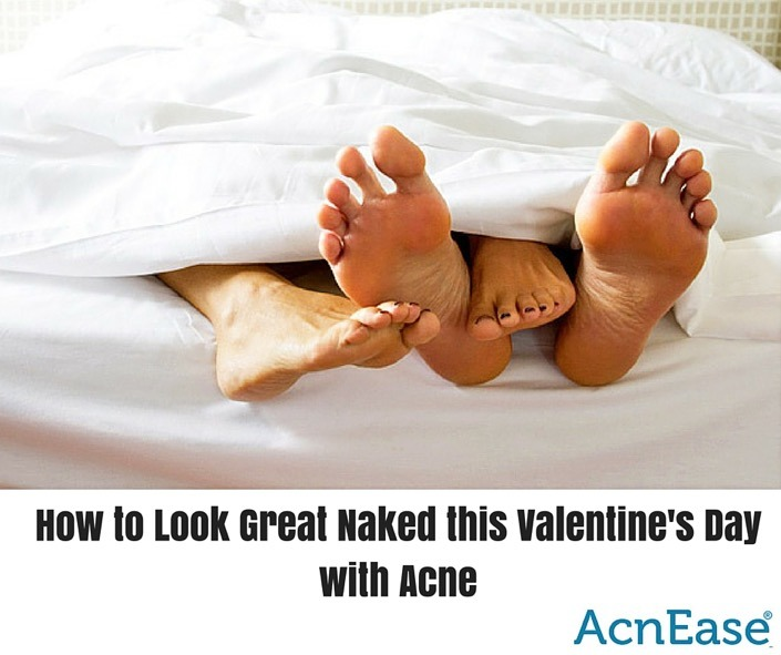 How to Look Great Naked this Valentine's Day with Acne