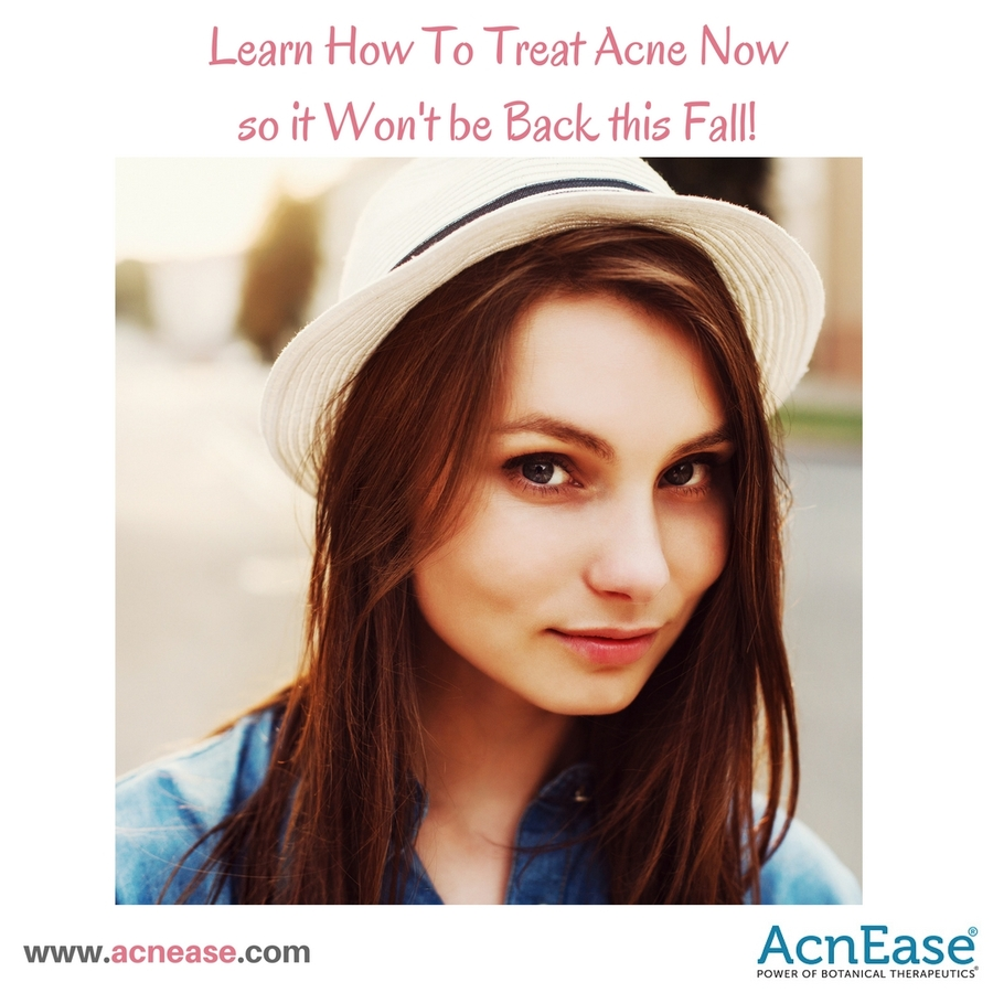 How to Treat Acne Now So That it Won't be Back This Fall