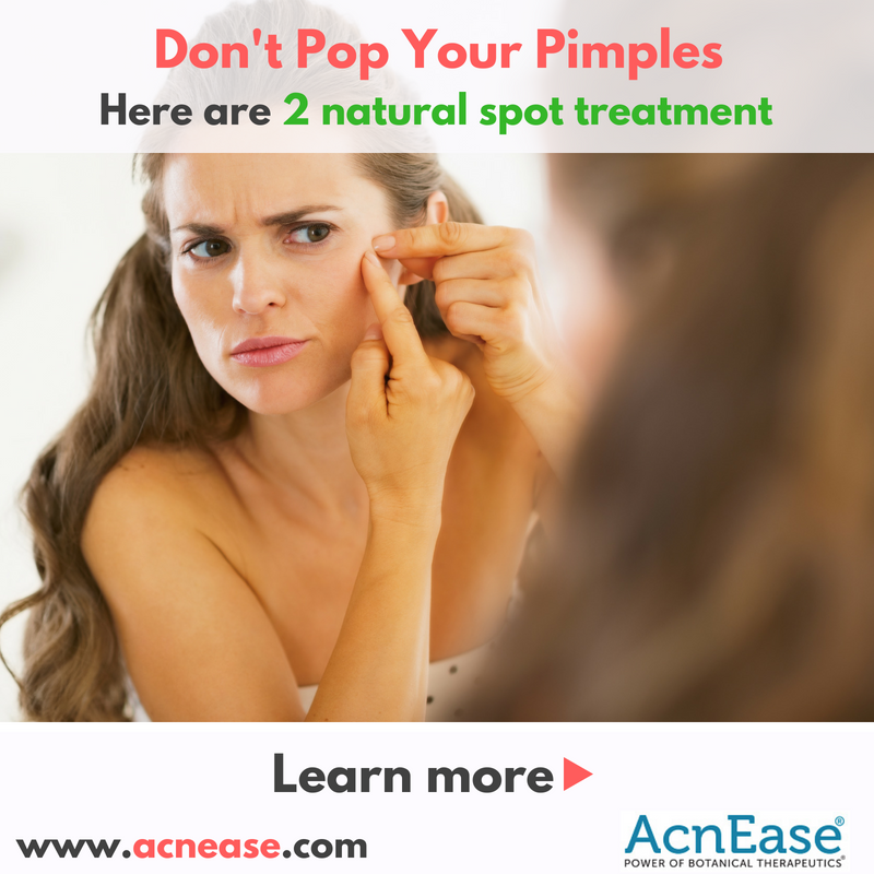 Don't Pop Your Pimples, here are 2 natural spot treatment