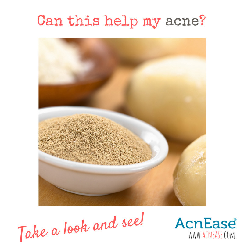The Many Ways To Use Brewer's Yeast To Help Fighting Acne