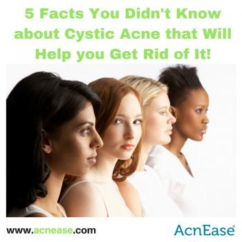 5 Facts You Didn't Know About Cystic Acne That Will Help You Get Rid of It