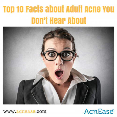 Top 10 Facts About Adult Acne You Don't Hear About