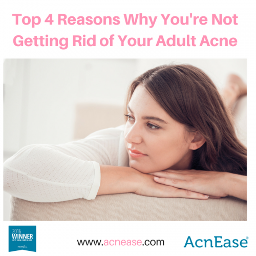 Top 4 Reasons Why You Aren't Getting Rid of Your Adult Acne