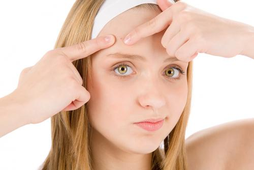 Teen Acne:  How to conquer breakouts in the Summer