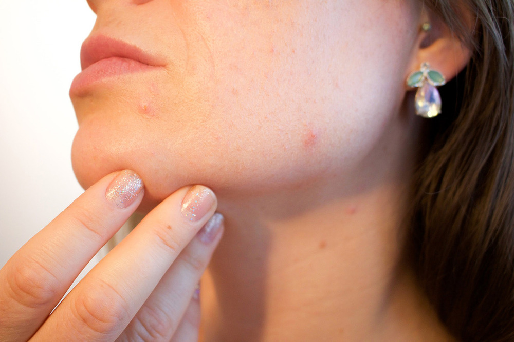 When It Comes To Acne-Prone Skin, What Are The   Do'S And Don'Ts?