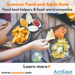 Summer Food and Adult Acne