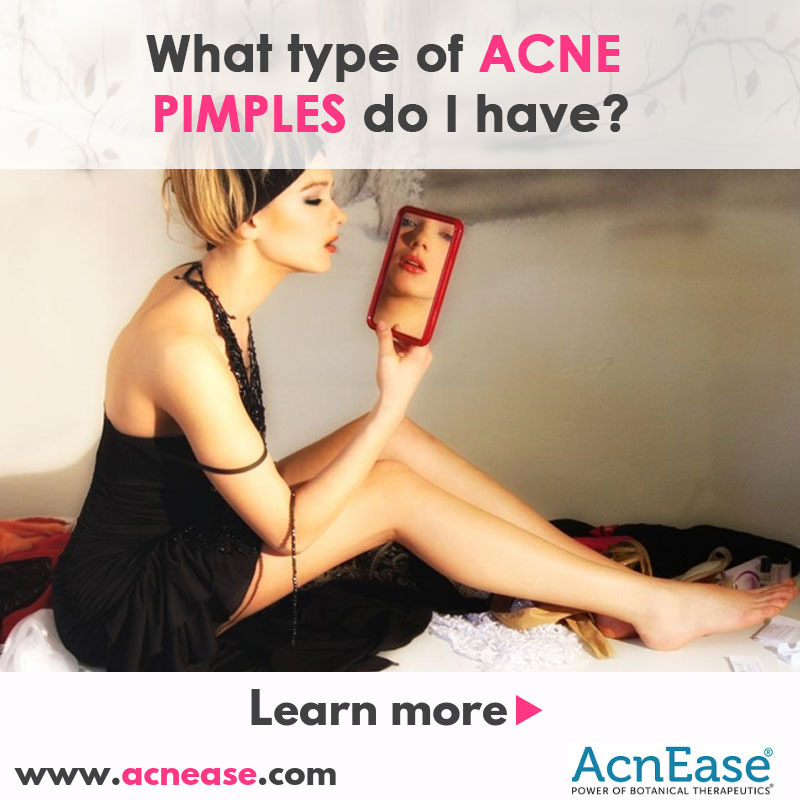 What type of acne pimples do I have?