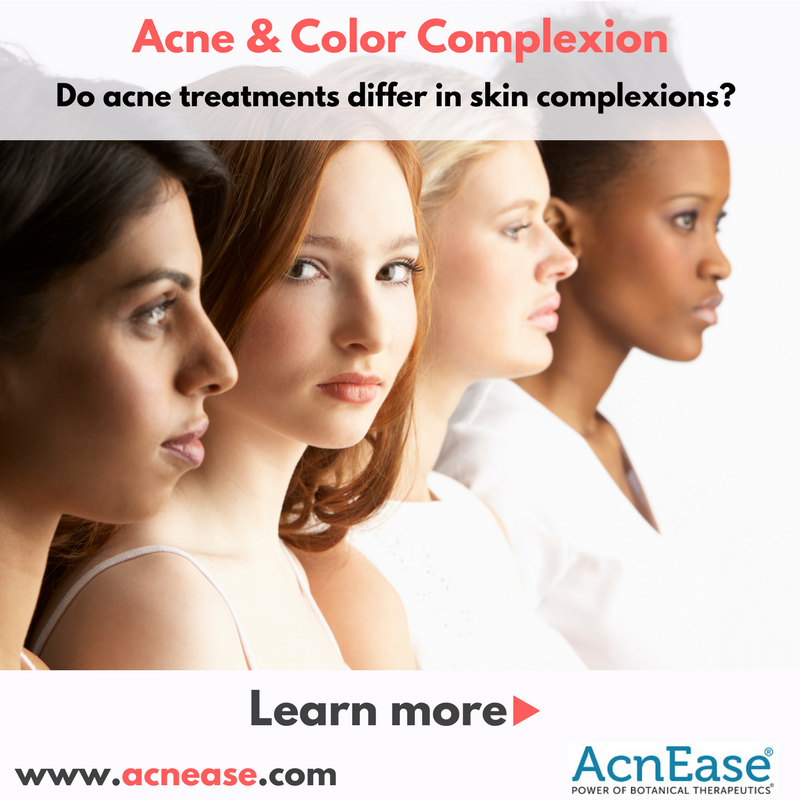 Is acne treatment different for different color complexion?