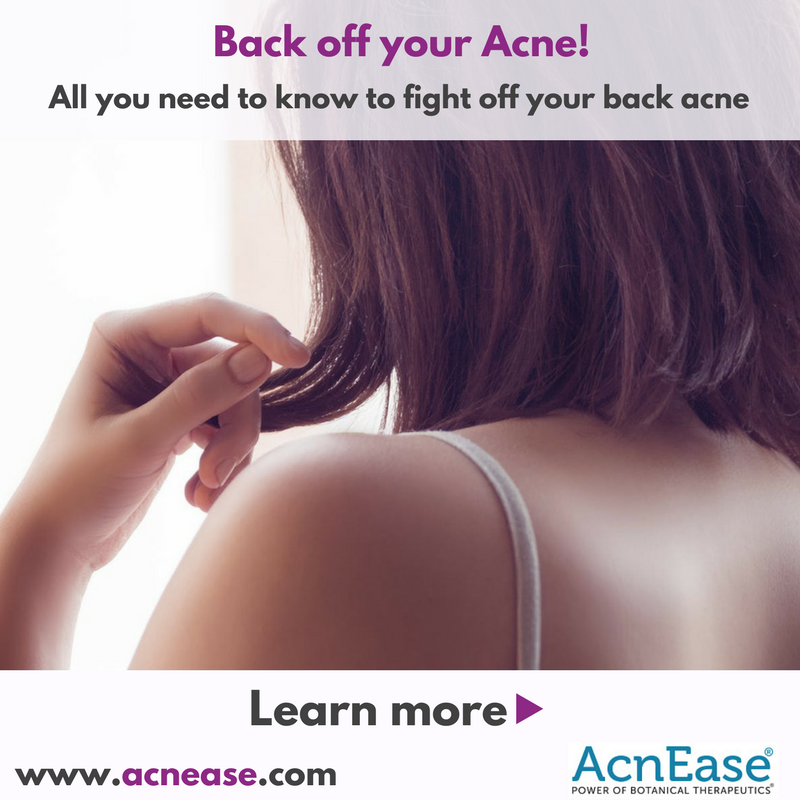 Back off your Acne!