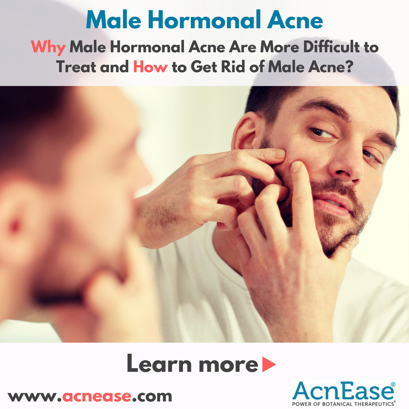 Why Male Hormonal Acne Are More Difficult to Treat and How to Get Rid of Male Acne